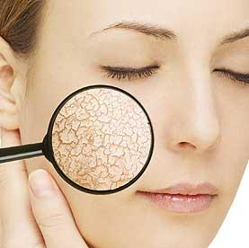 Le point sur les différents types de peau